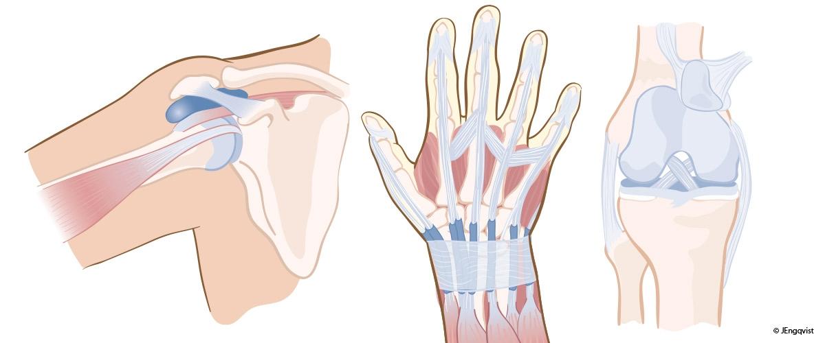 2-anatomi-medicinsk-illumedic-JeanetteEngqvist
