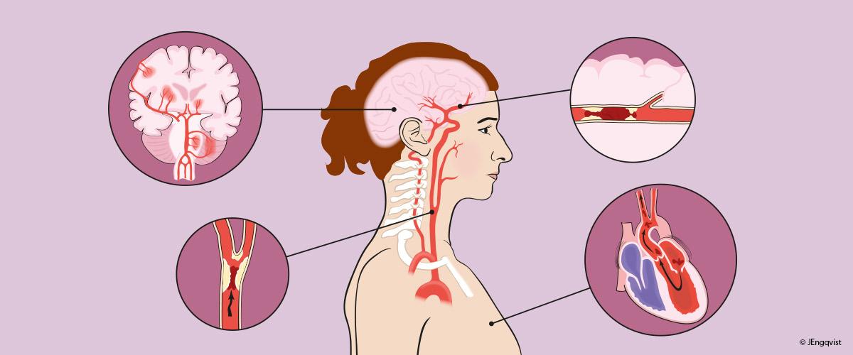 Stroke-medicinsk-illustration