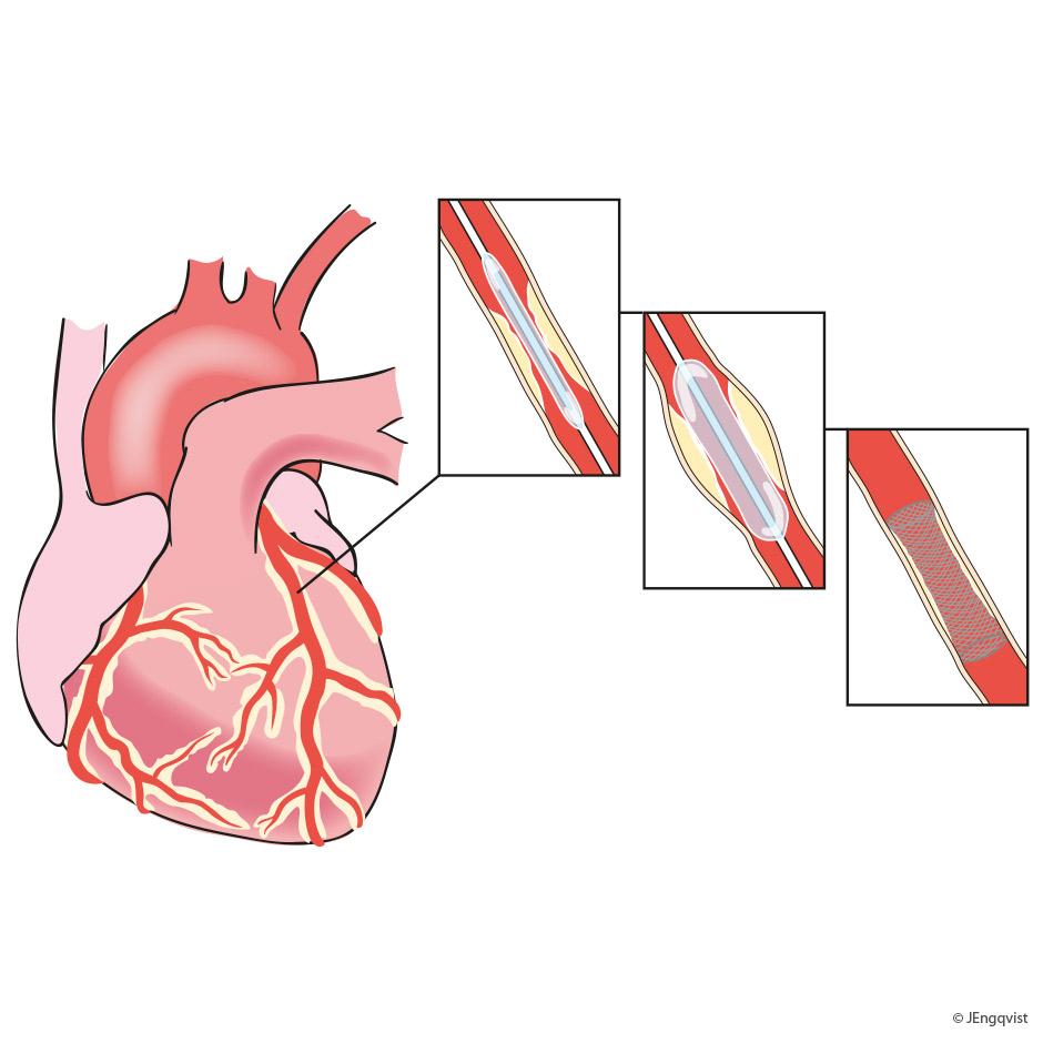 ballongdilatation-kardiologi
