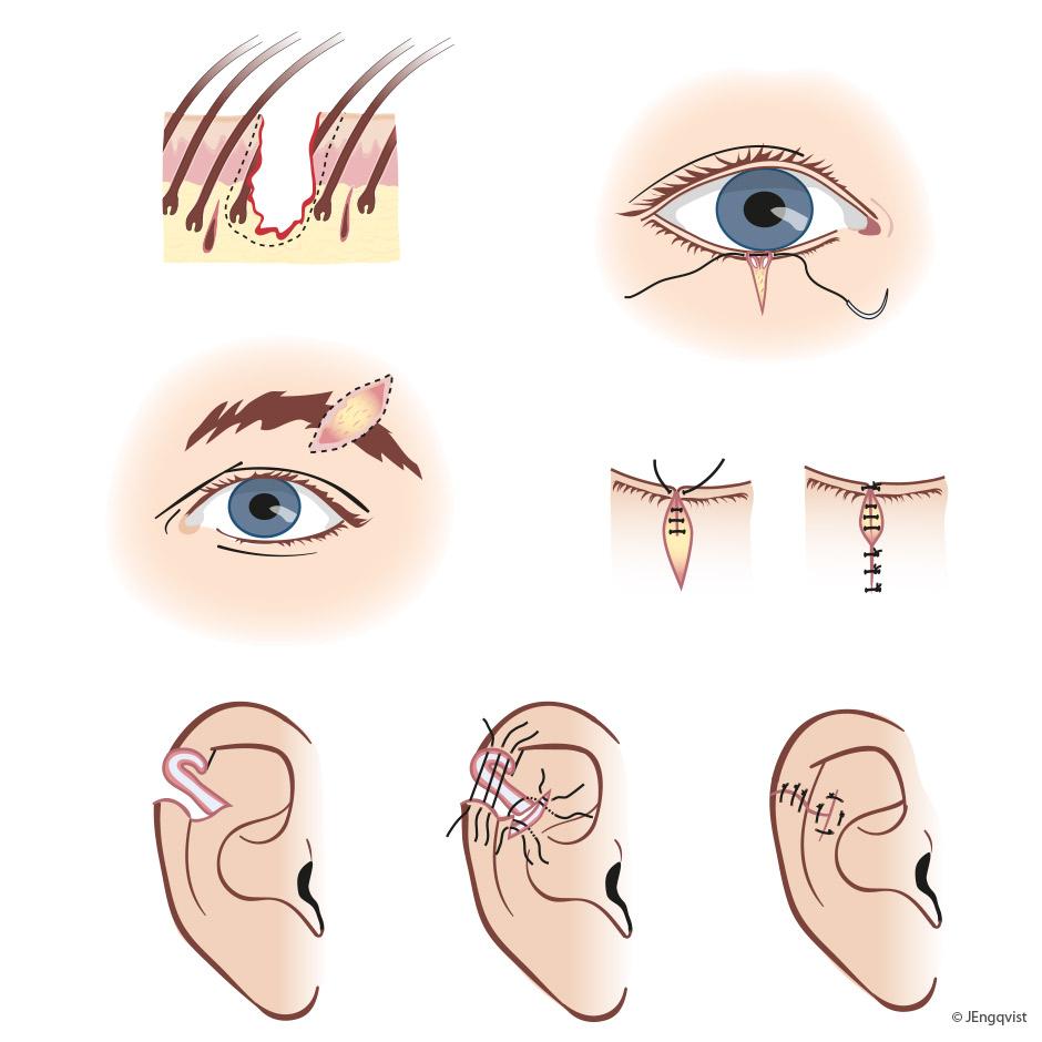 kirurgi-ansikt