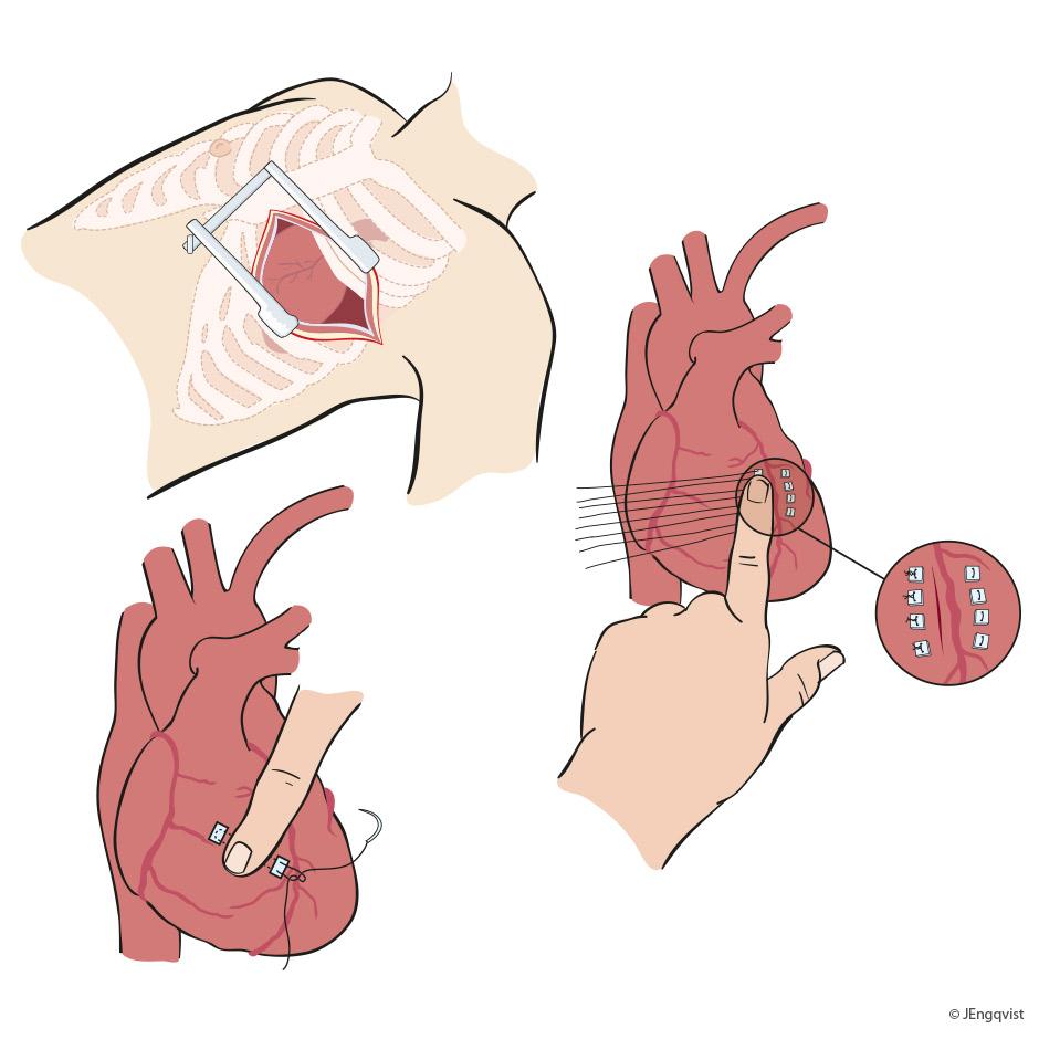 kirurgi-kardiologi