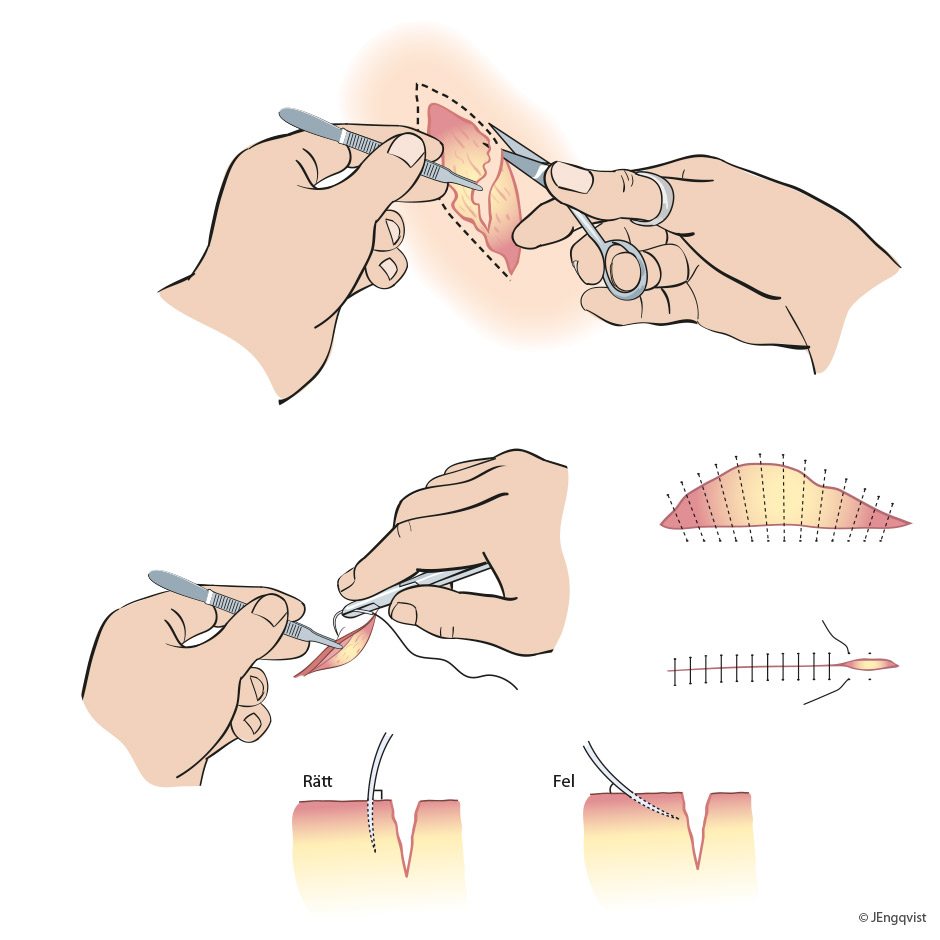 kirurgi-sutur