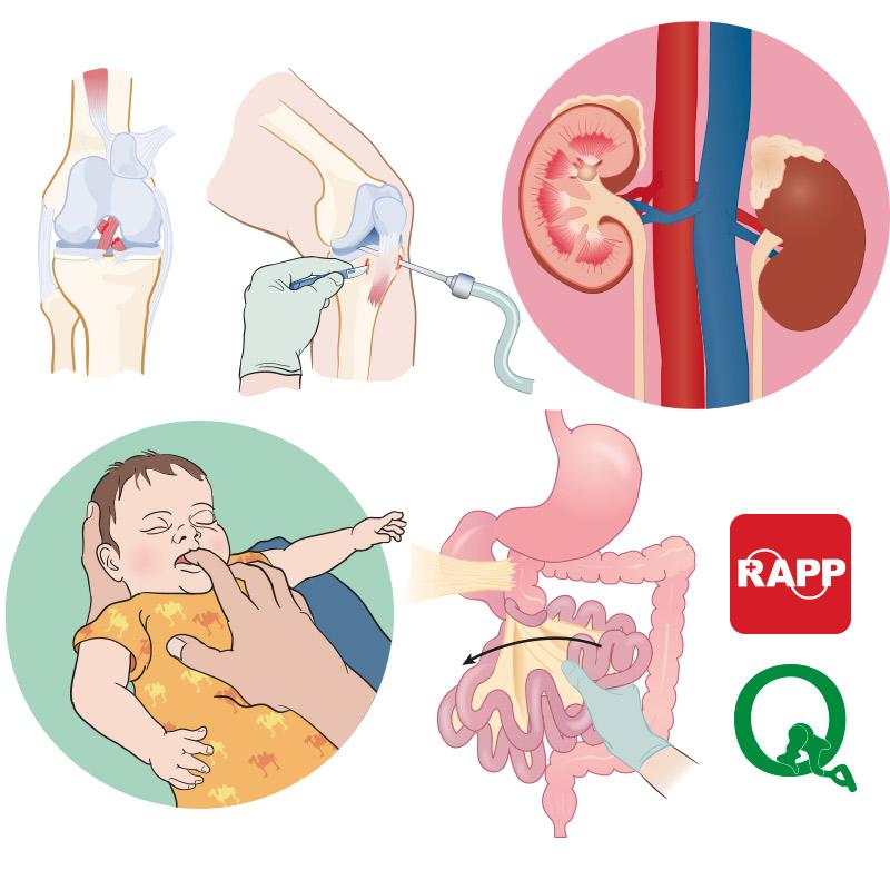 medisinsk-illumedic-kirurgi