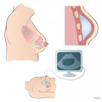 Bröstcancer inplantat ultraljud