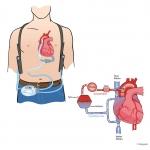 Hjärt-lungmaskin
