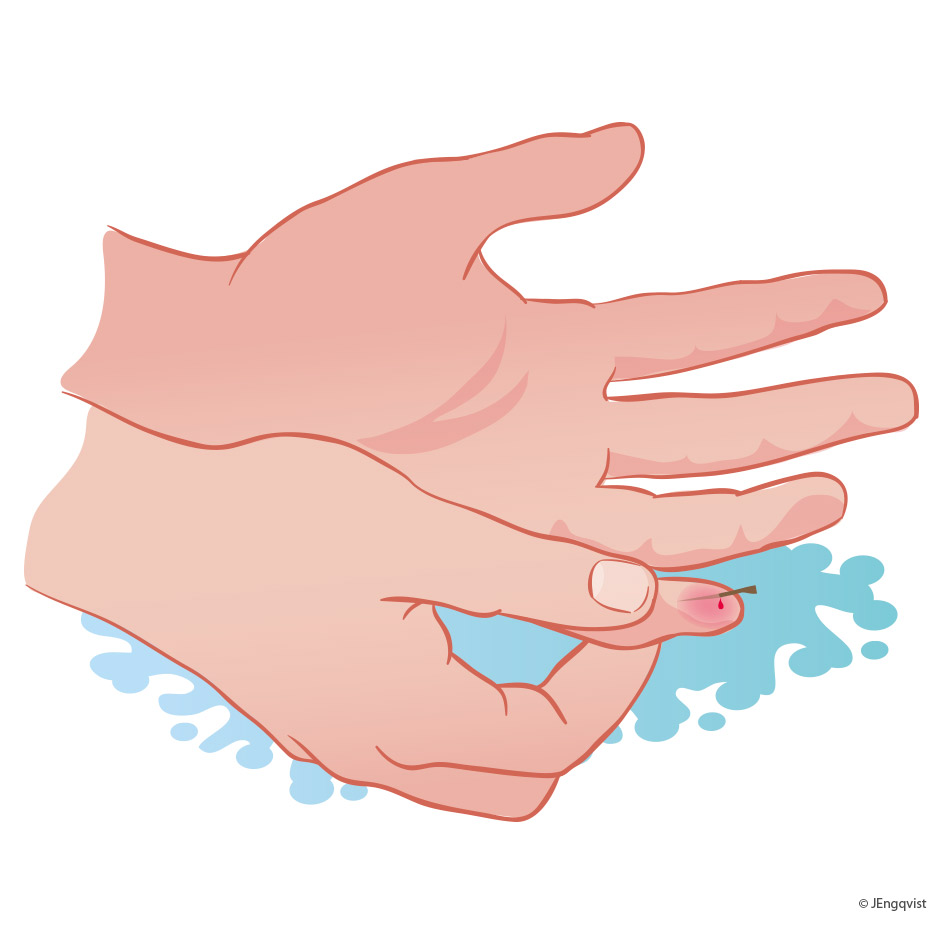 stickas-finger-illumedic